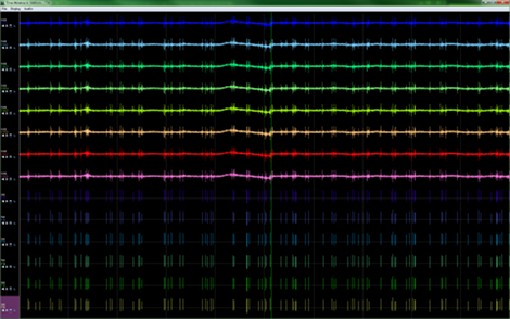 <strong>Time Window features: </strong> <ul> <li>Smooth scrolling displays show synchronized EEG/LFP CSC channels, spikes and event records in a multi-trace oscilloscope format  </li> <li>Display time ranges from 100 milliseconds to 10 seconds   </li> <li>Individual vertical waveform zooming for quick display adjustments to view signal details </li> <li>Smooth scrolling - even for channels with slower sampling rates  </li> <li>Display may be paused and reviewed for investigating interesting events</li> </ul>